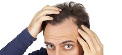 Queda de cabelo: como tratar
